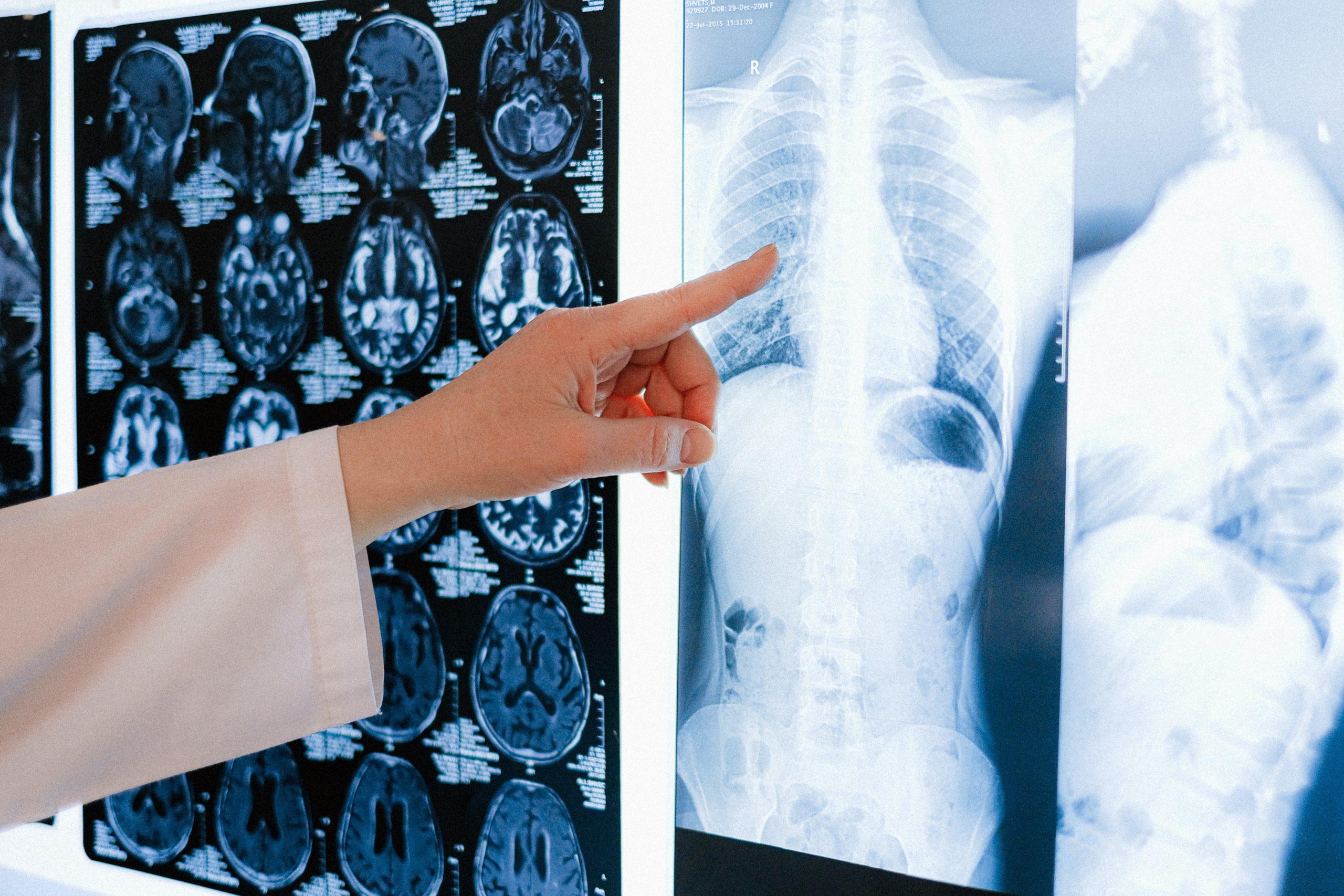 Искусственный интеллект выявил признаки рака легких после COVID-19