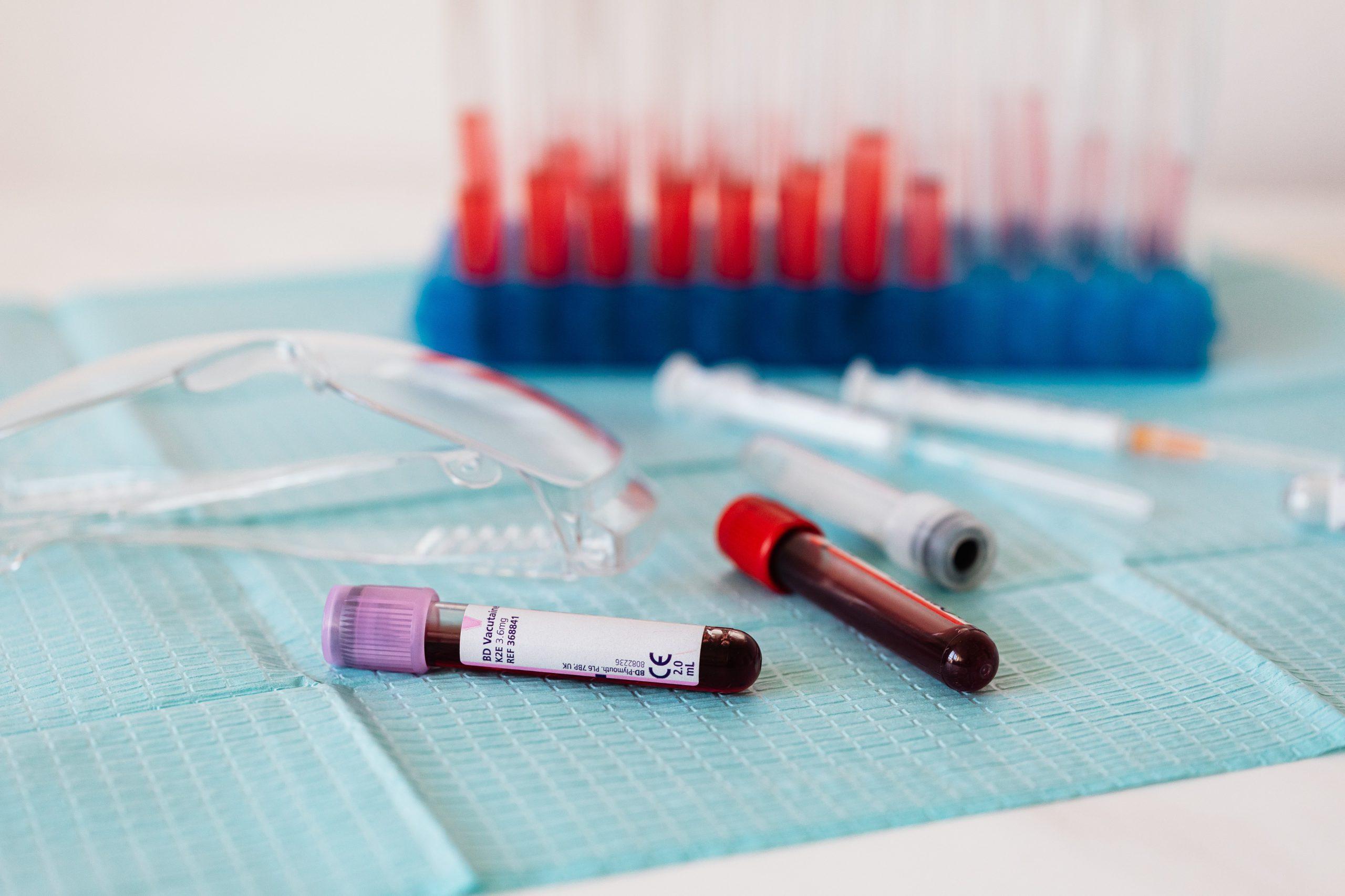 Собянин выделил почти 700 млн рублей на заготовку плазмы для лечения коронавируса